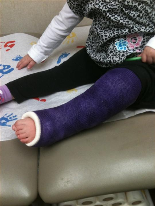 Well, we went from a sprained ankle to a full on leg cast...